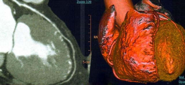 ANGIO TAC Coronarica: Una nuova metodologia di diagnosi non invasiva