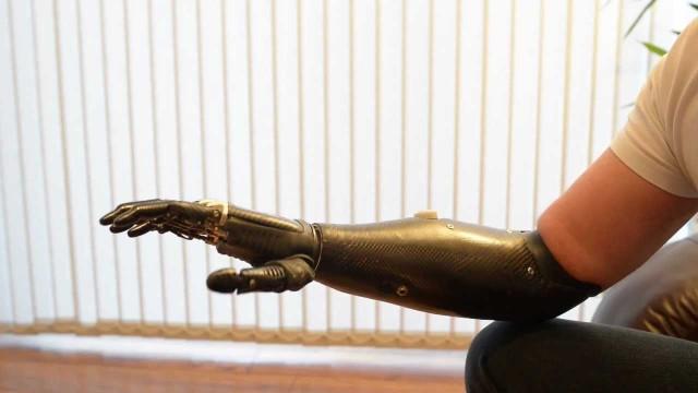 Primo trapianto-mano in Italia si fa amputare l'arto dopo 13 anni: sarà impiantato un arto bionico