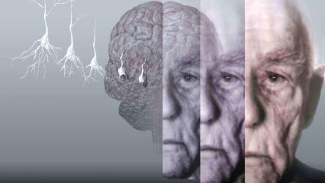 Alzheimer: scoperto legame tra abuso di farmaci da banco e rischio demenza