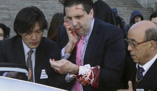 SEUL: L'ambasciatore degli Stati Uniti attaccato a colpi di rasoio